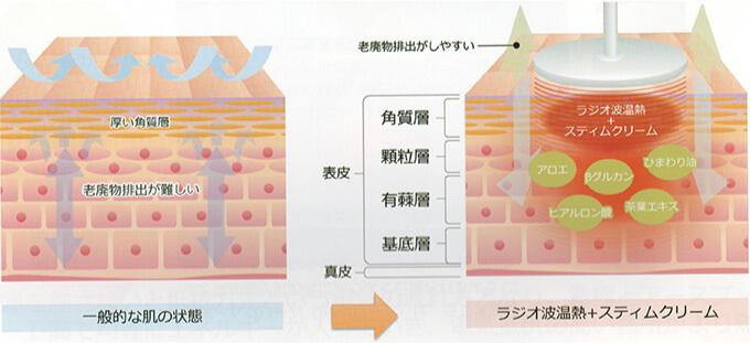 ラジオ波温熱療法で使用するスティムクリームは老廃物排出がしやすい